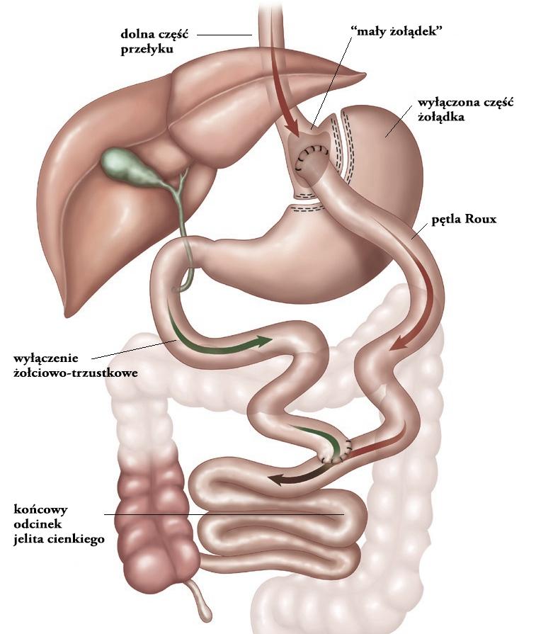 gastric-bypass-schemat